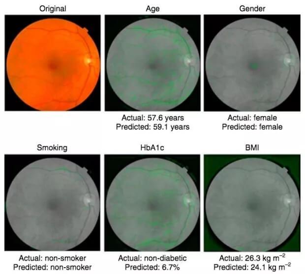 Google 开发人工智能系统通过扫描眼睛预测心脏病